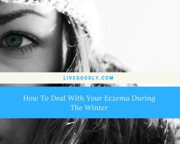 How To Deal With Your Eczema During The Winter